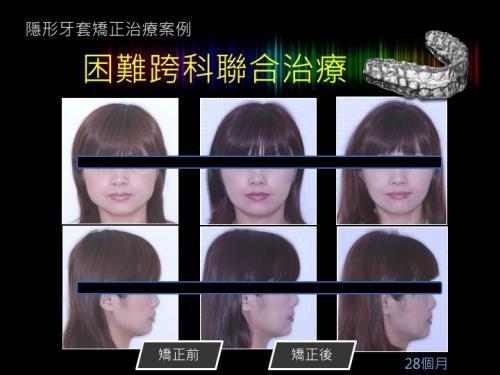 face 201803 08