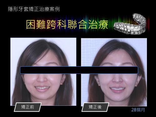 face 201803 10