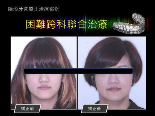 face 201803 11