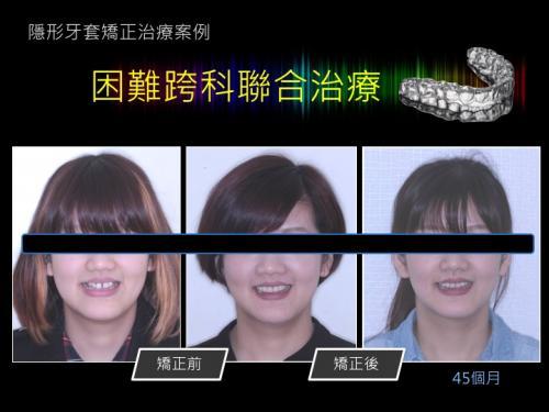 face 201803 13